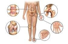 arthritis diagram