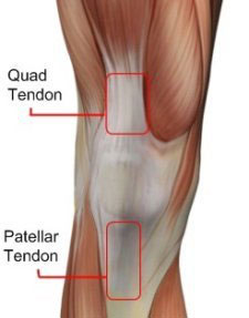Quad tendon